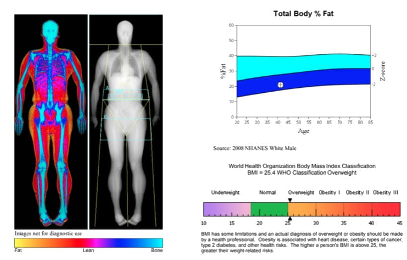 Body composition scan by DEXA Plus