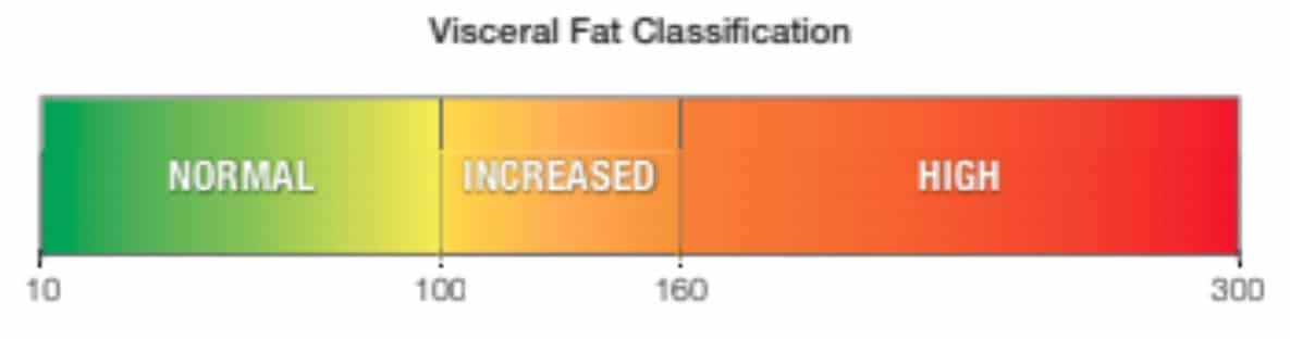 Visceral fat test by DEXA Plus